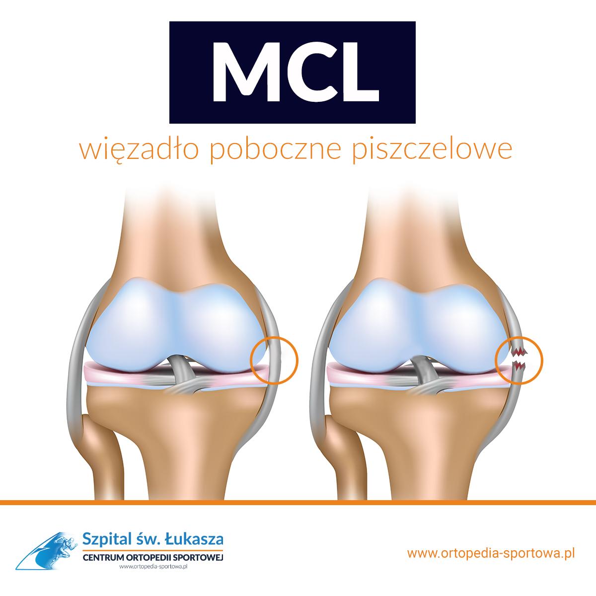 MCL więzadło ortopedia piszczelowe