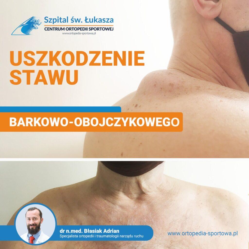 ortopedia bielsko ortopeda urazy barku